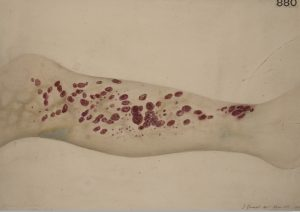 Leg of a patient with scorbutus (scurvy), 1887. By: Godart, Thomas . Courtesy of St Bartholomew's Hospital Archives & Museum, Wellcome Images.